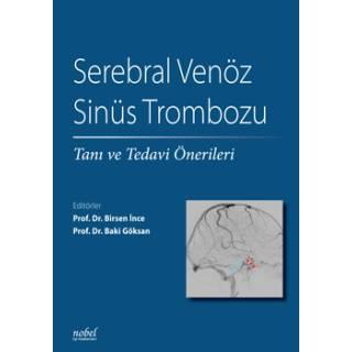 Serebral Venöz Sinüs Trombozu: Tanı ve Tedavi Önerileri